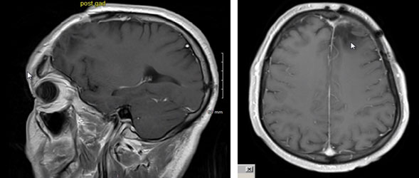 Oligodendroglioma patient 7 years after treatment
